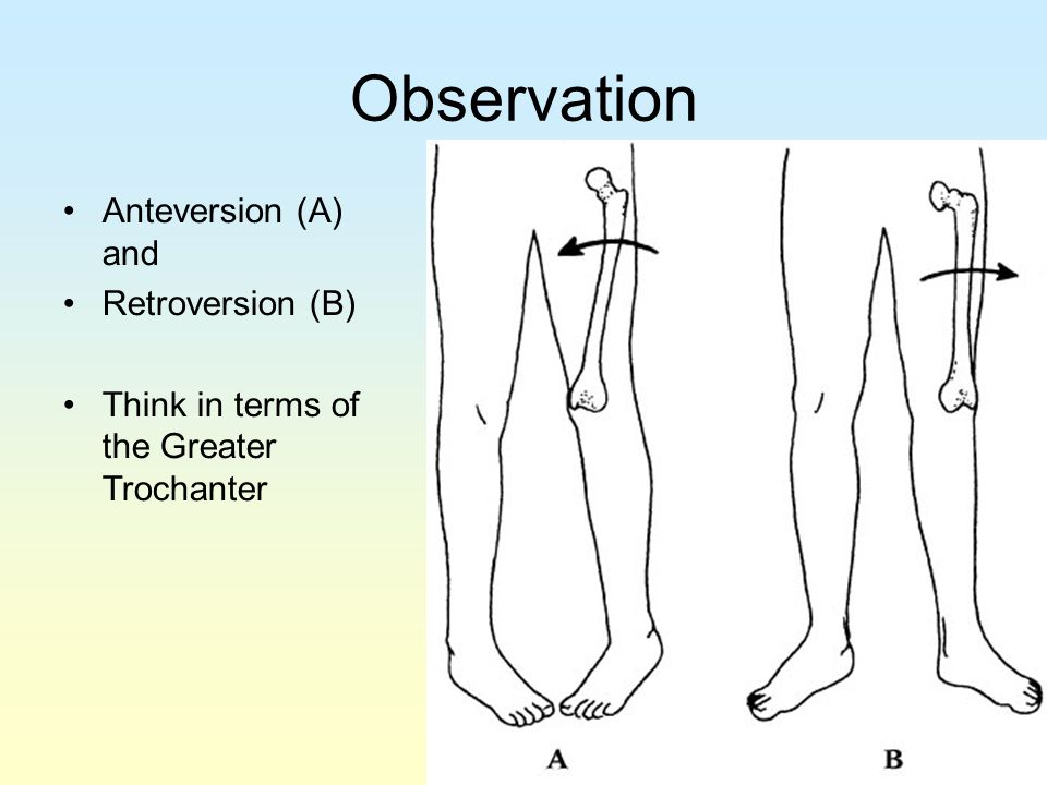 Observation Anteversion (A) and Retroversion (B)