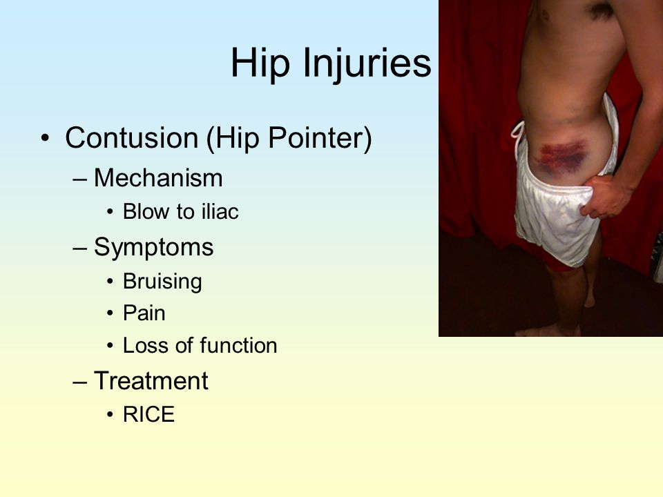 Hip Injuries Contusion (Hip Pointer) Mechanism Symptoms Treatment