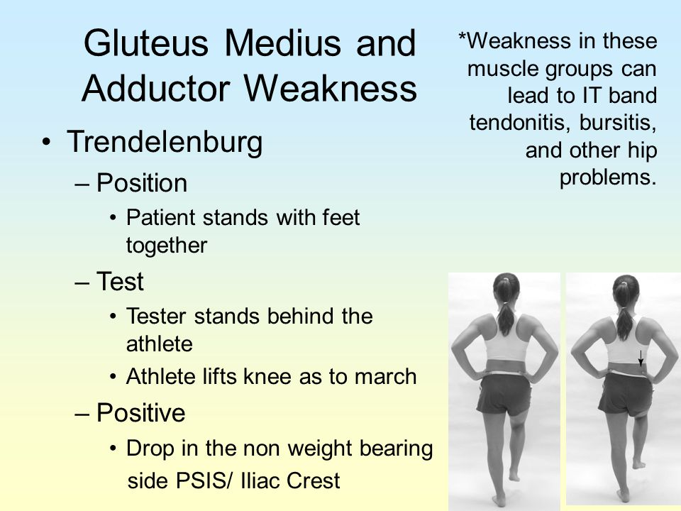 Gluteus Medius and Adductor Weakness