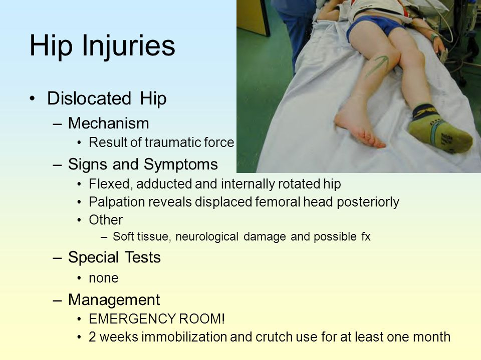 Hip Injuries Dislocated Hip Mechanism Signs and Symptoms Special Tests