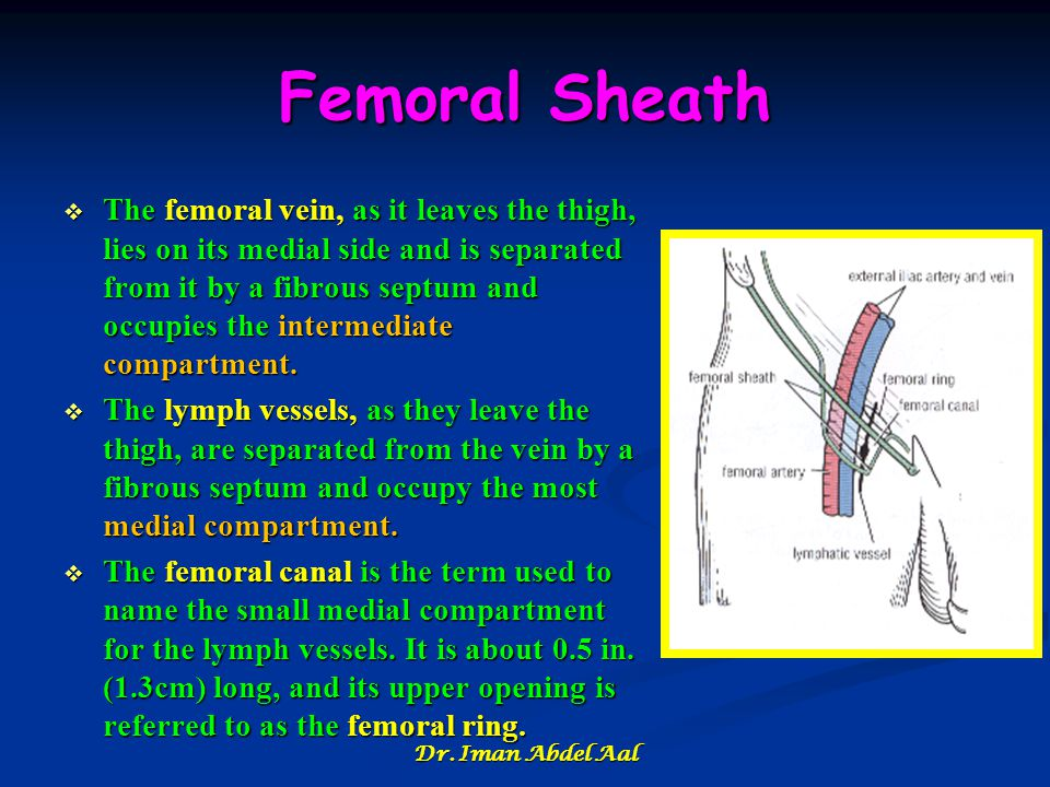 Femoral Sheath