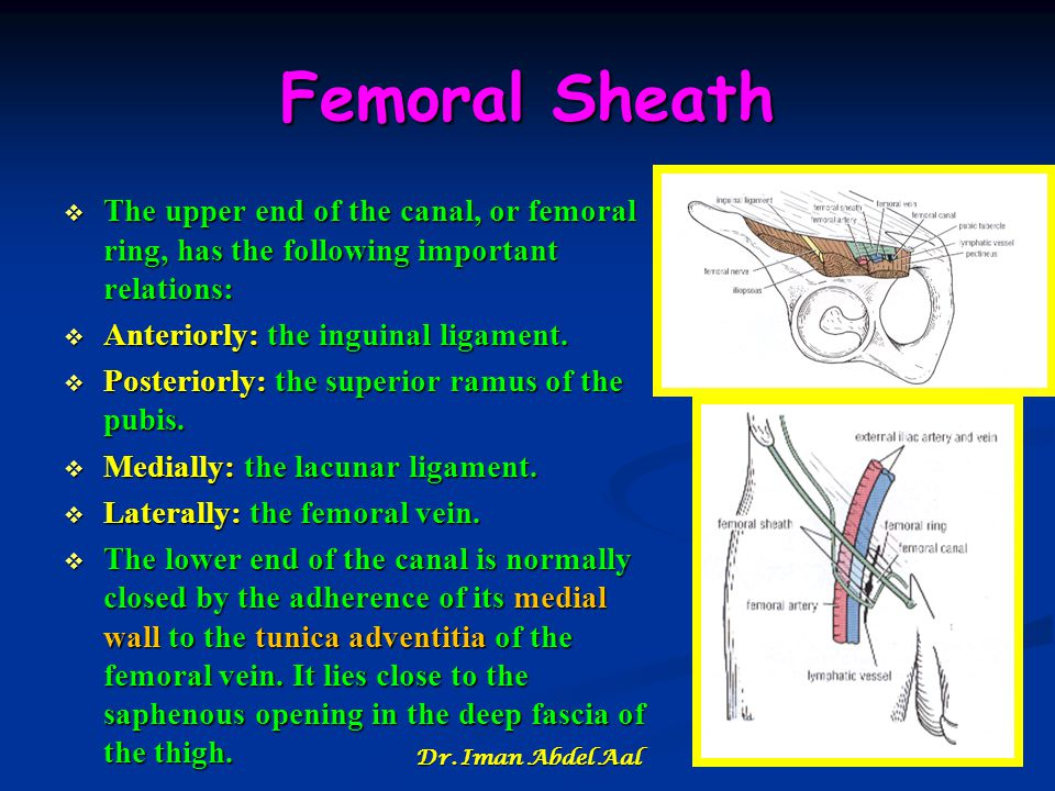 Femoral Sheath The upper end of the canal, or femoral ring, has the following important relations: Anteriorly: the inguinal ligament.