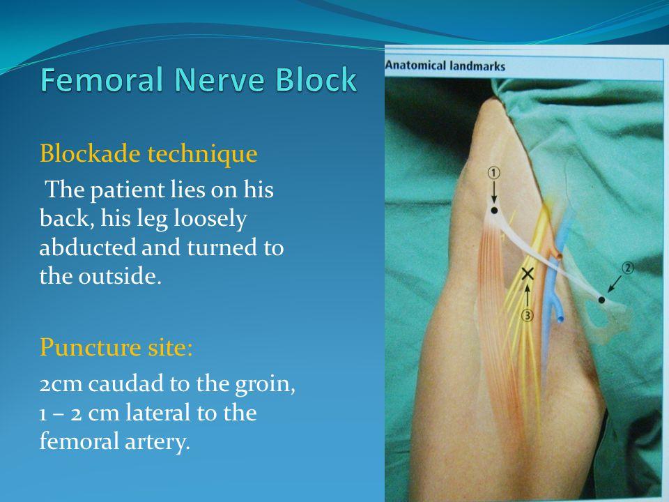 peripheral nerve blocks using nerve stimulator - ppt video online, Muscles