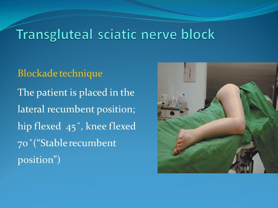 Transgluteal sciatic nerve block
