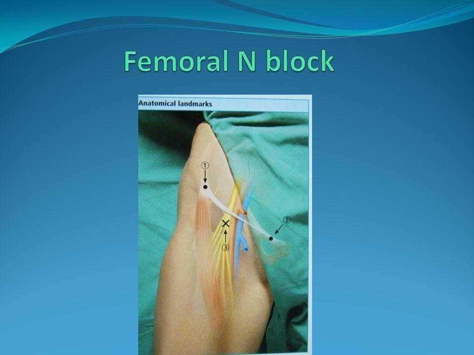Femoral N block