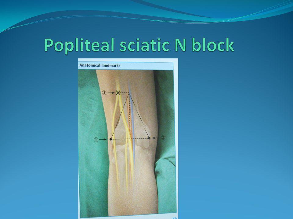Popliteal sciatic N block