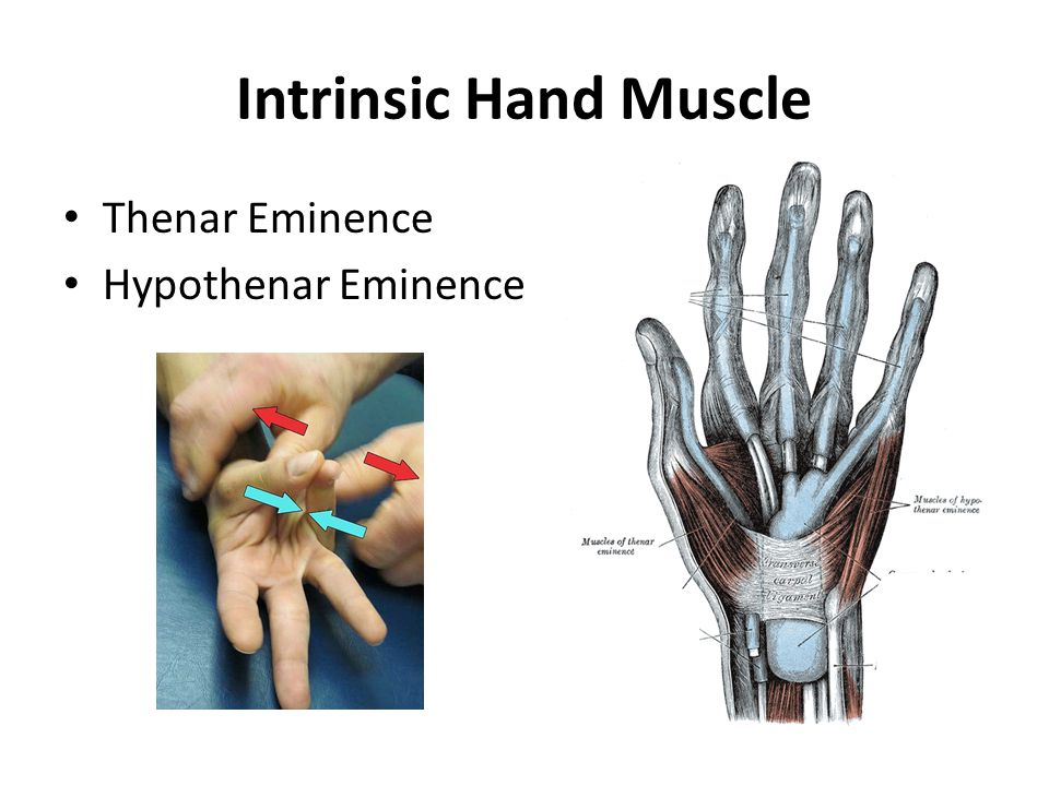 Intrinsic Hand Muscle Thenar Eminence Hypothenar Eminence