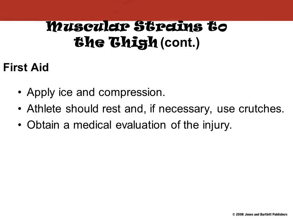 Muscular Strains to the Thigh (cont.)