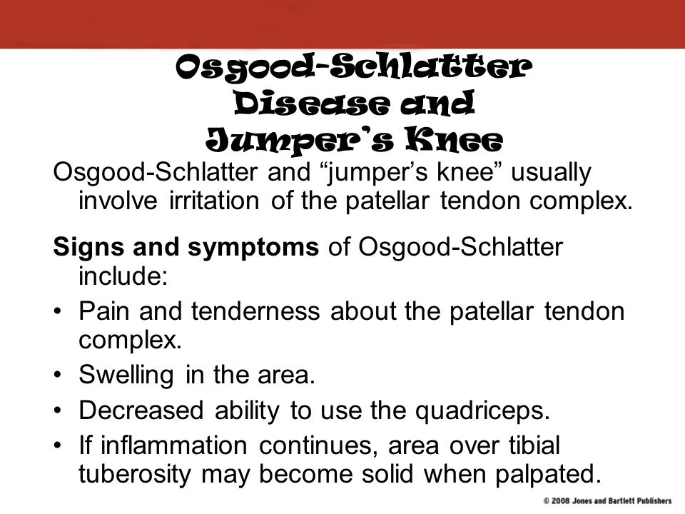 Osgood-Schlatter Disease and Jumper's Knee