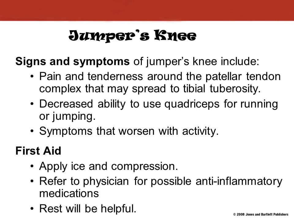 Jumper's Knee Signs and symptoms of jumper's knee include: