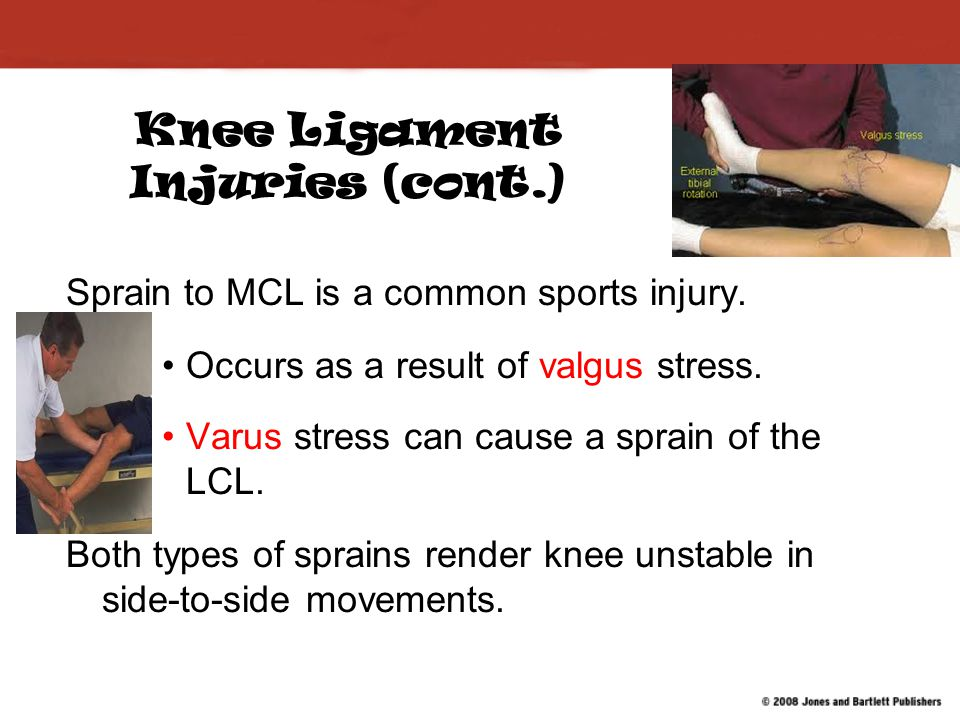 Knee Ligament Injuries (cont.)