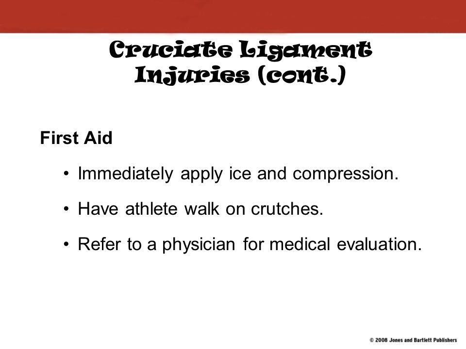 Cruciate Ligament Injuries (cont.)