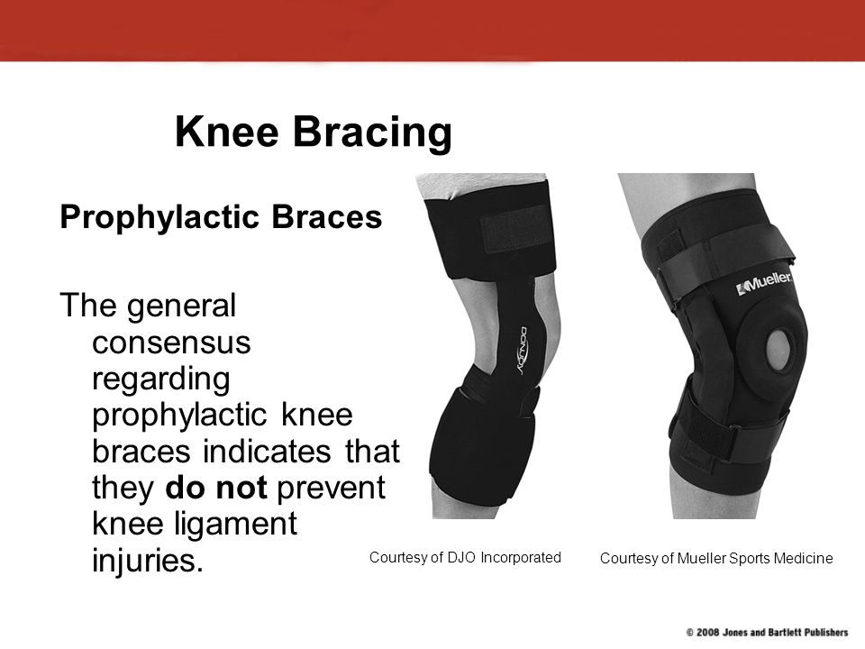 Knee Bracing Prophylactic Braces