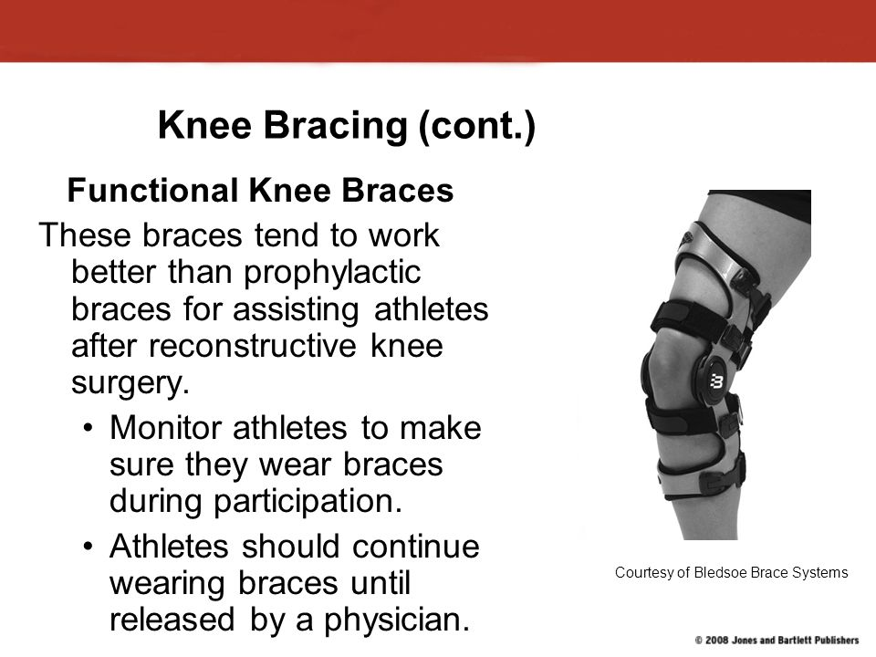 Knee Bracing (cont.) Functional Knee Braces