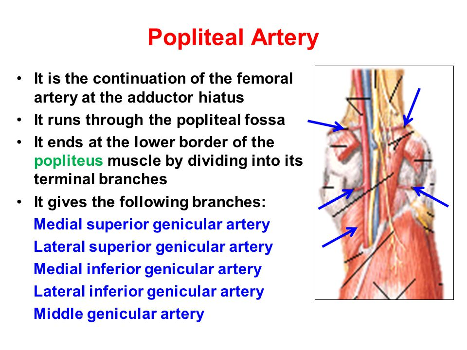 Popliteal Artery It is the continuation of the femoral artery at the adductor hiatus. It runs through the popliteal fossa.