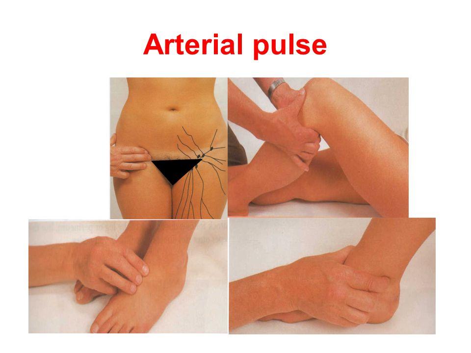 Arterial pulse