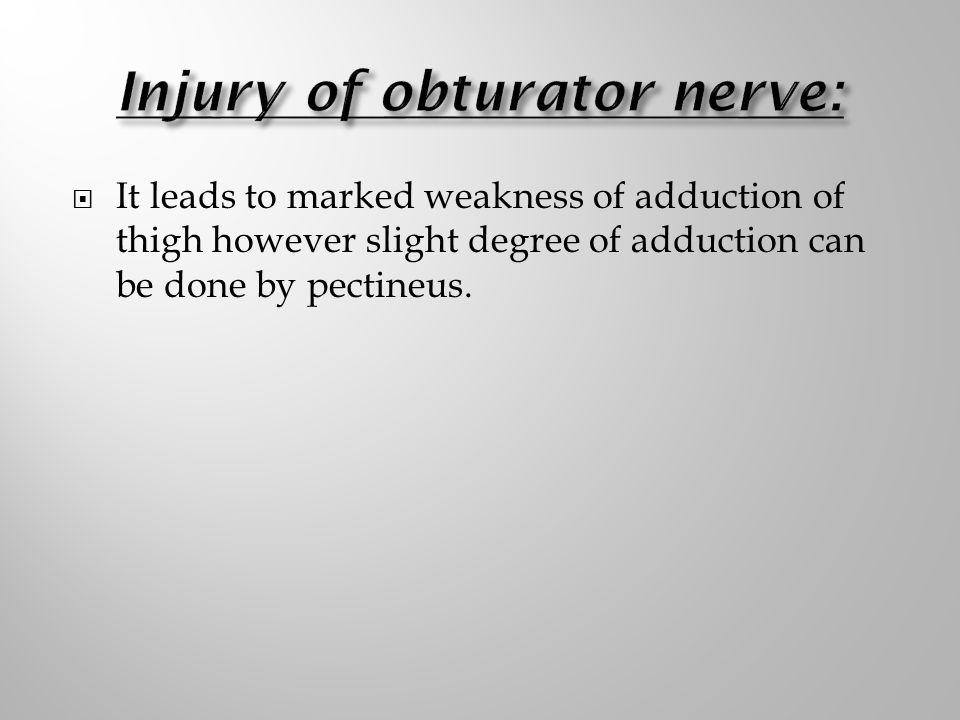 Injury of obturator nerve: