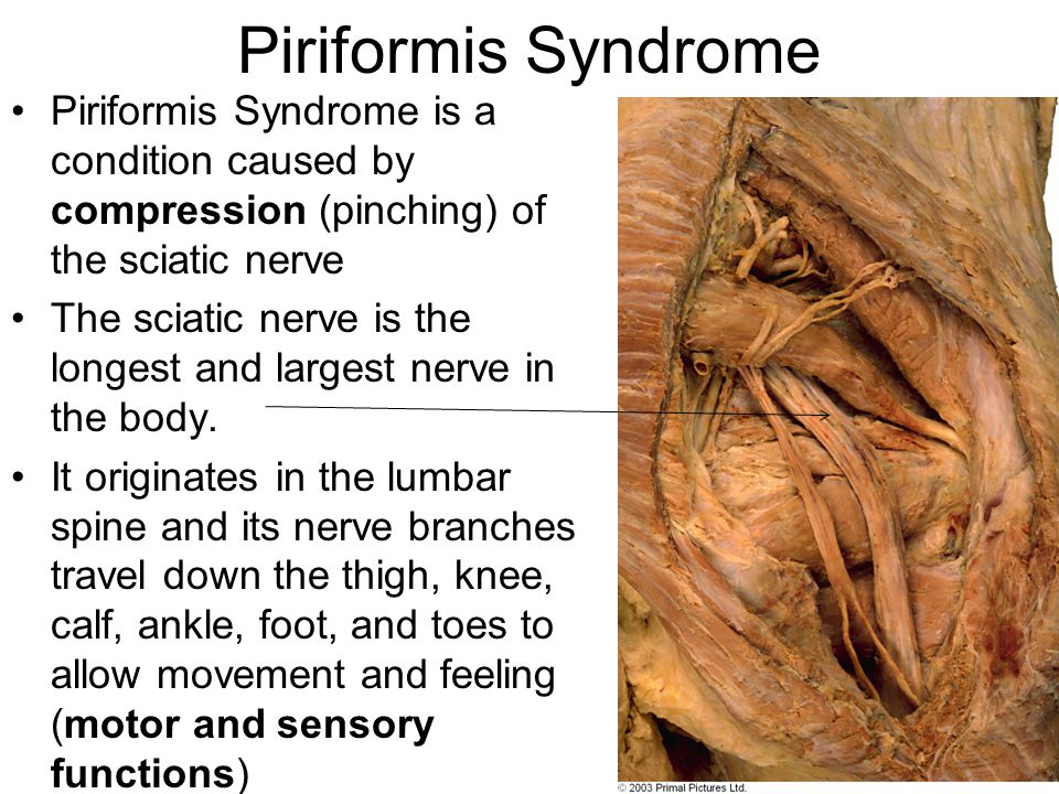 Piriformis Syndrome Piriformis Syndrome is a condition caused by compression (pinching) of the sciatic nerve.