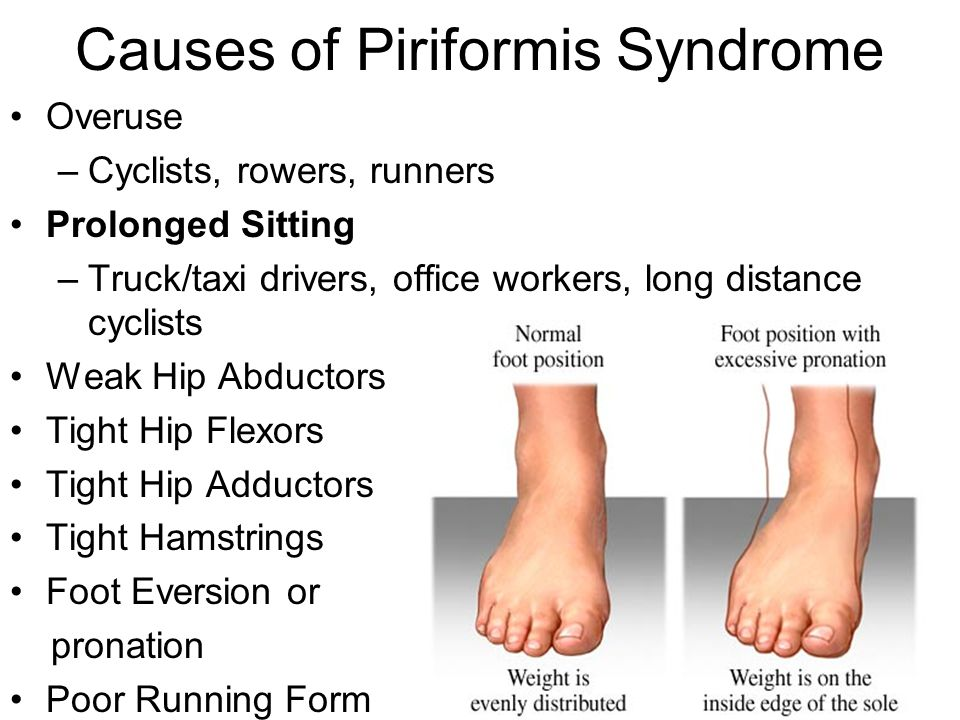 Causes of Piriformis Syndrome