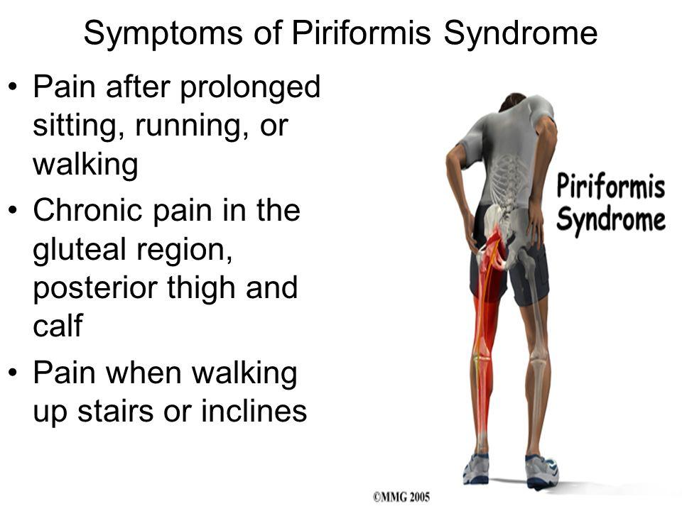 Symptoms of Piriformis Syndrome