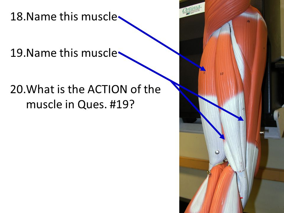 Name this muscle What is the ACTION of the muscle in Ques. #19