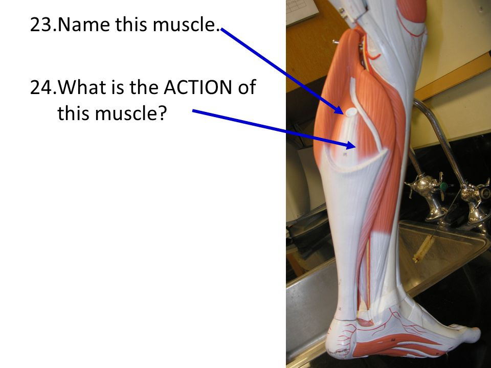 Name this muscle. What is the ACTION of this muscle