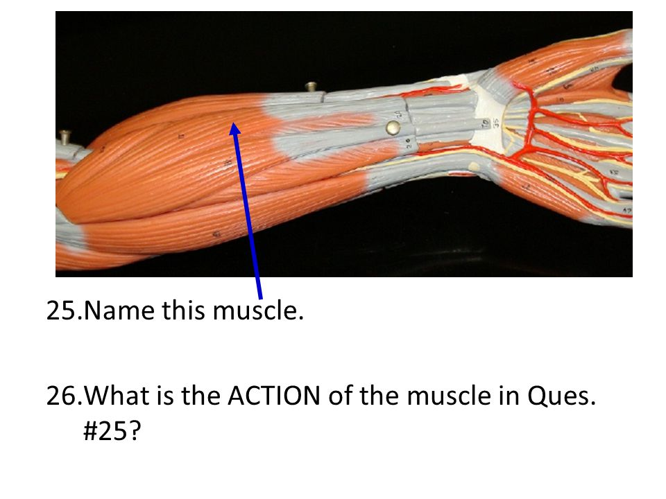 Name this muscle. What is the ACTION of the muscle in Ques. #25
