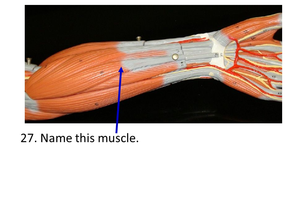 27. Name this muscle.