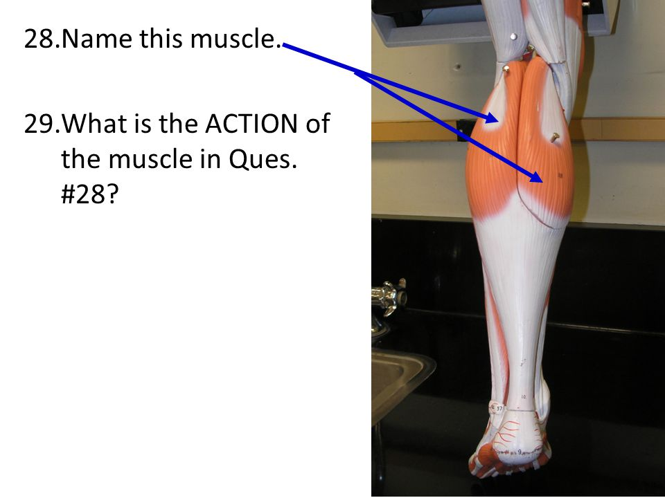 Name this muscle. What is the ACTION of the muscle in Ques. #28