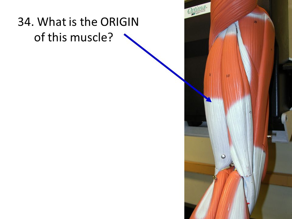 34. What is the ORIGIN of this muscle