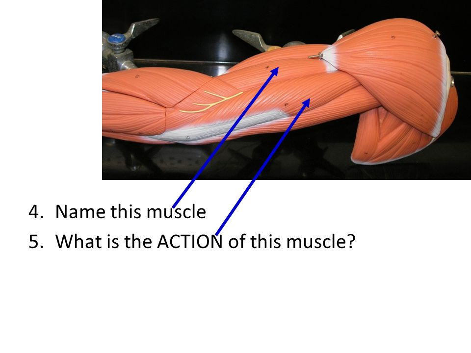 Name this muscle What is the ACTION of this muscle