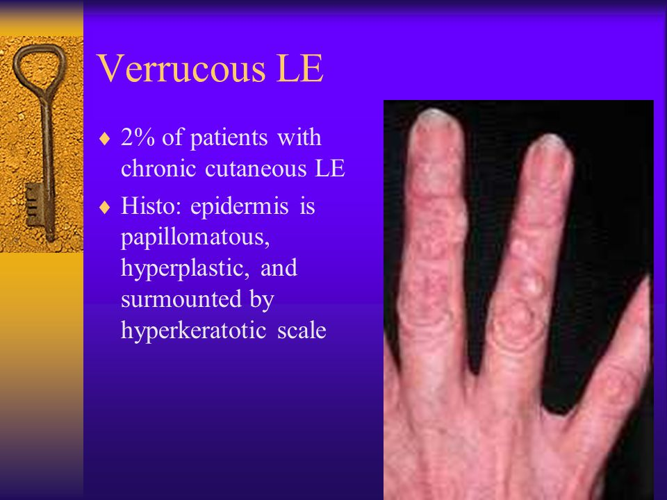 Verrucous LE 2% of patients with chronic cutaneous LE