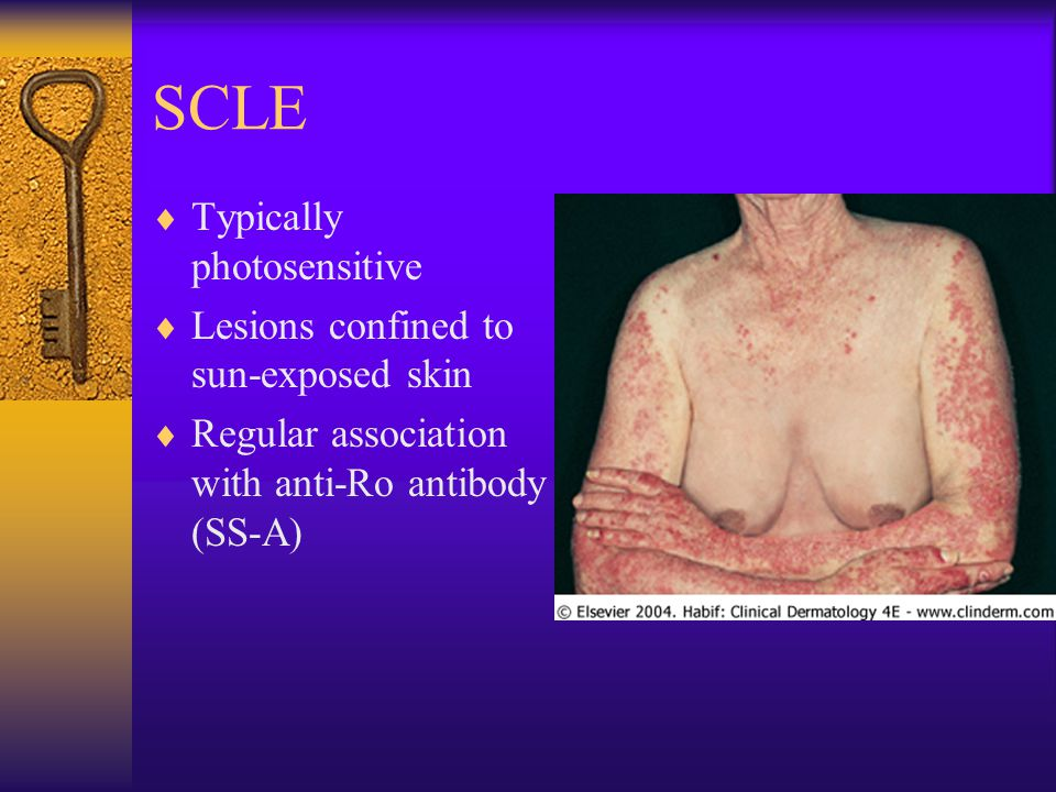 SCLE Typically photosensitive Lesions confined to sun-exposed skin