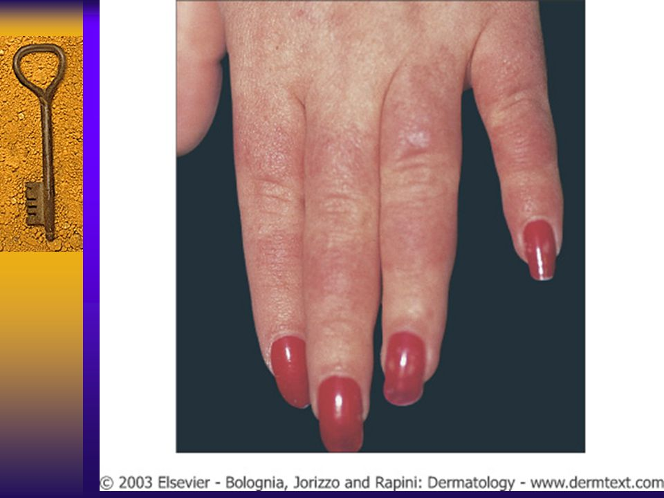 The lesions on the hands conform to the typical distribution of lupus lesions, sparing the knuckles.