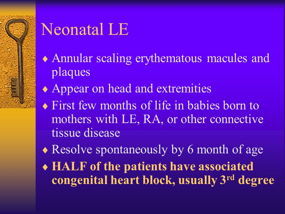Neonatal LE Annular scaling erythematous macules and plaques