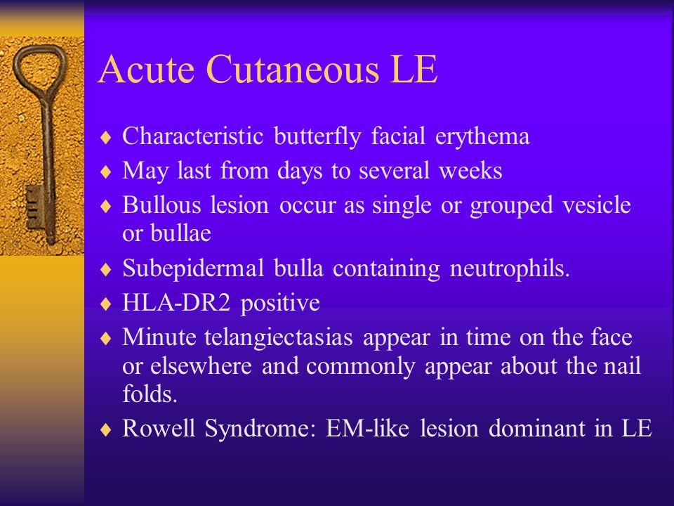 Acute Cutaneous LE Characteristic butterfly facial erythema