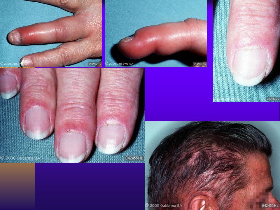 Other cutaneous manifestations include subungual telangiectasias, erythema and edema of the digits and diffuse nonscarring alopecia