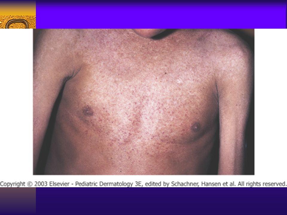 Poikiloderma in dermatomyositis.
