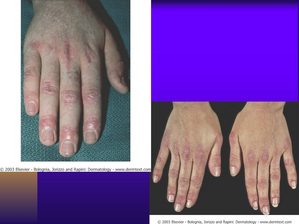 Gottron s sign with violaceous poikiloderma over the knuckles.