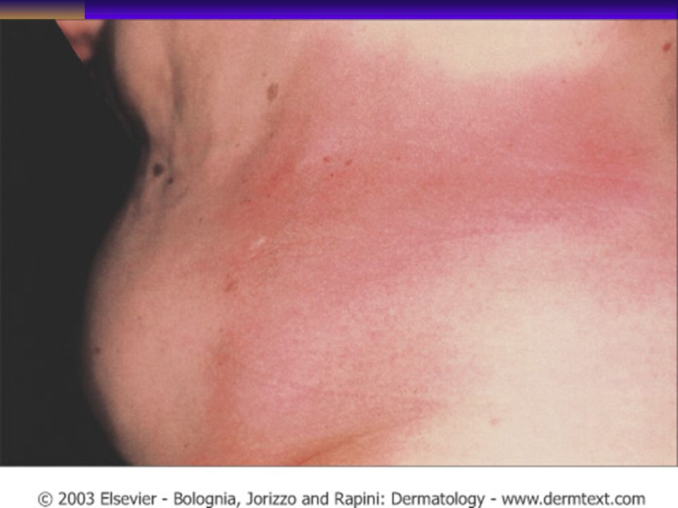 Early inflammatory plaque type morphea of the trunk