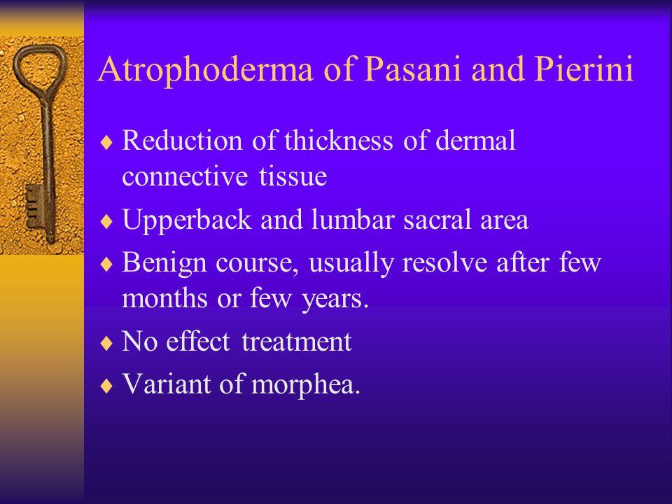 Atrophoderma of Pasani and Pierini