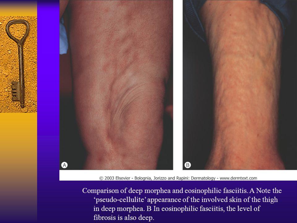 Comparison of deep morphea and eosinophilic fasciitis