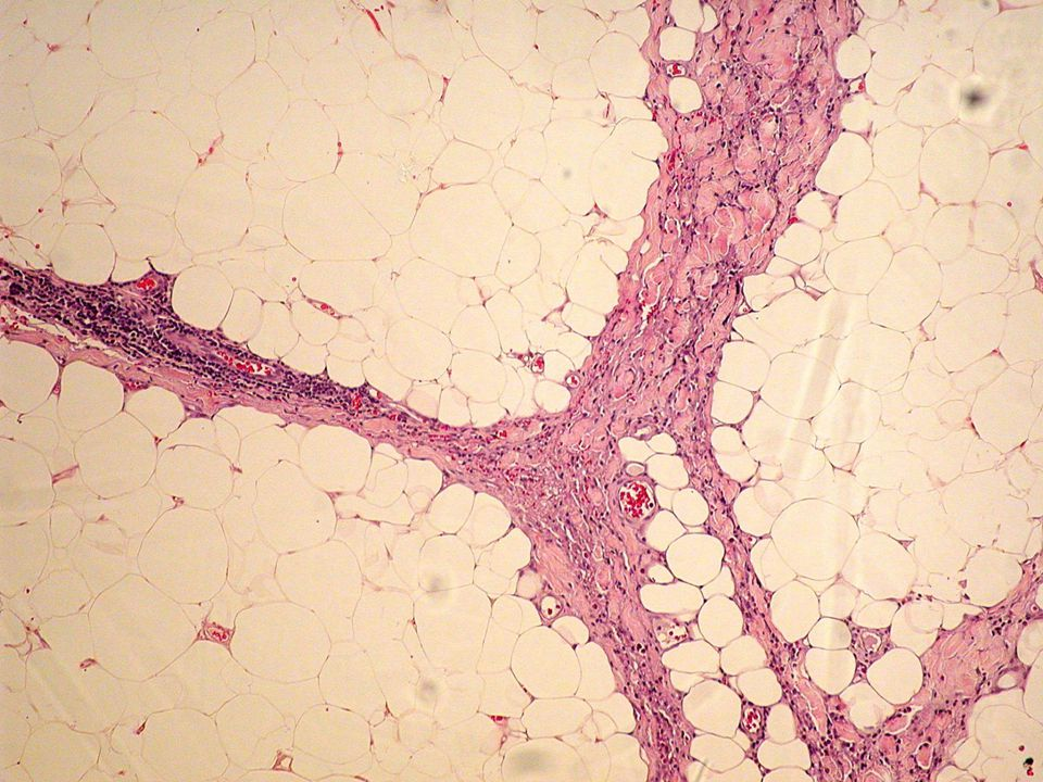 In the septae of the subcutis and fascia there is fibrosis and numerous inflammatory cells, including lymphocytes, histiocytes, and plasma cells.
