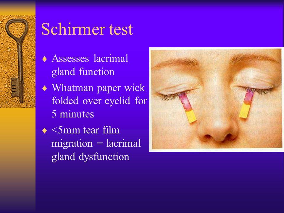 Schirmer test Assesses lacrimal gland function