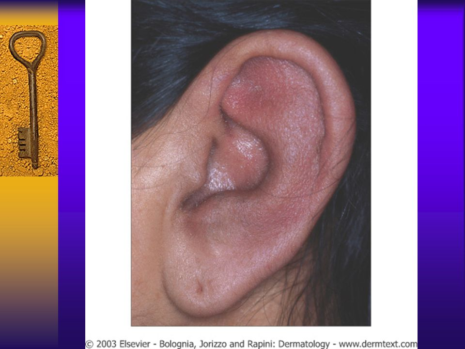 Erythema and swelling of the ear with sparing of the earlobe (no cartilage)
