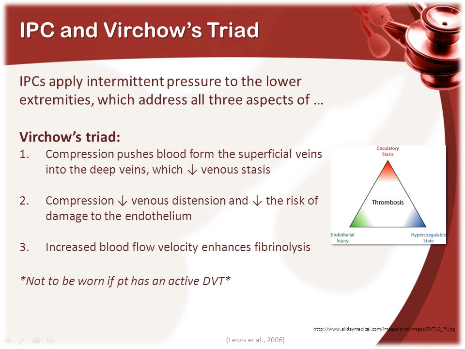 IPC and Virchow's Triad