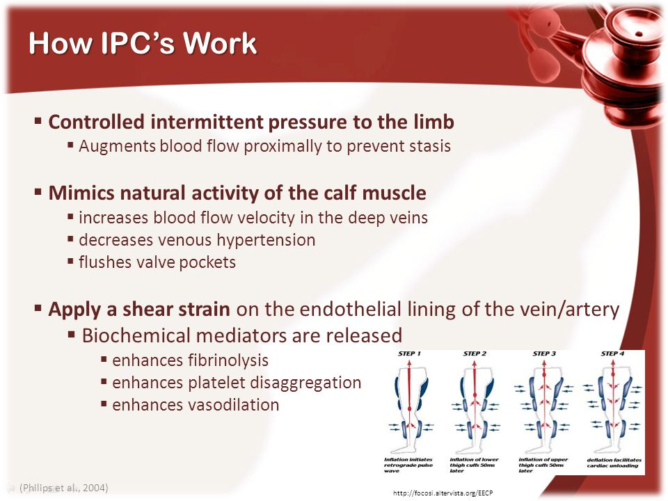 How IPC's Work Controlled intermittent pressure to the limb