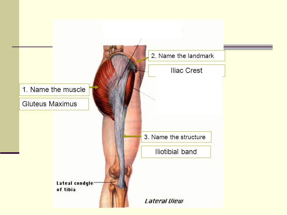 Iliac Crest 1. Name the muscle Gluteus Maximus Iliotibial band