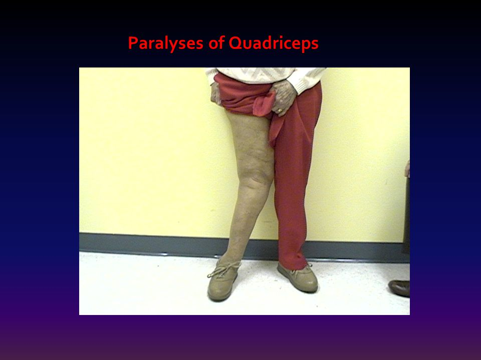 Paralyses of Quadriceps
