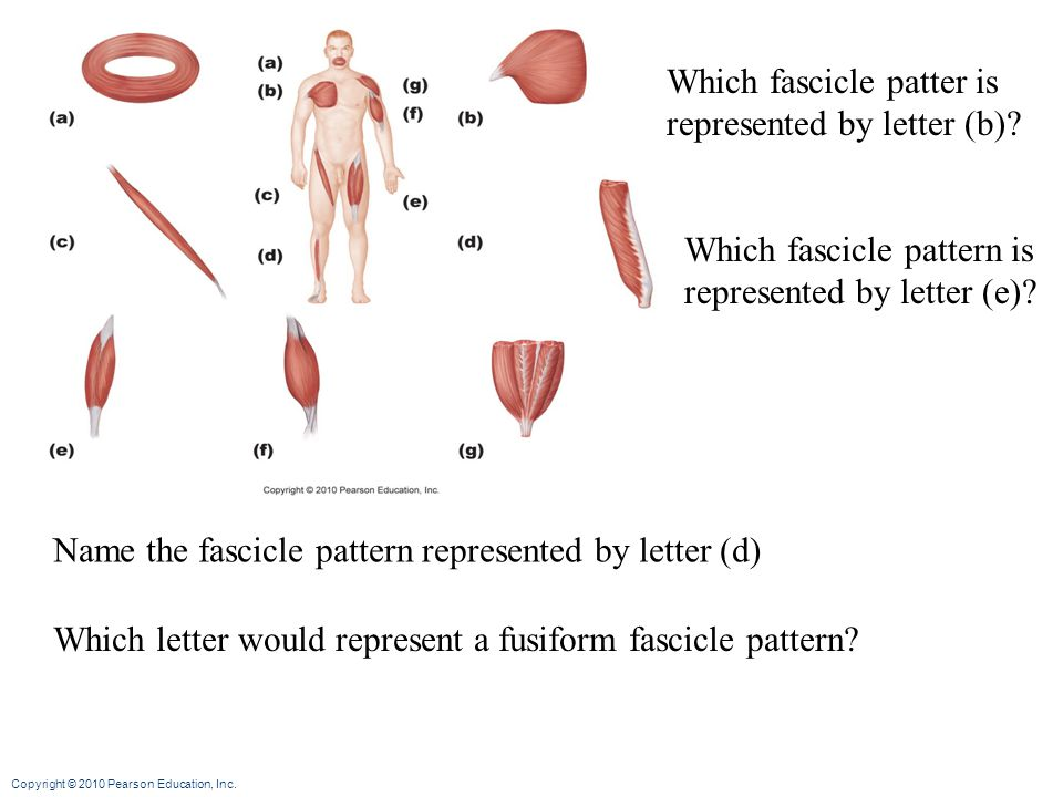 Which fascicle patter is represented by letter (b)